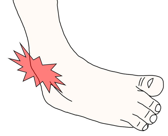 内反捻挫(外側靭帯損傷)